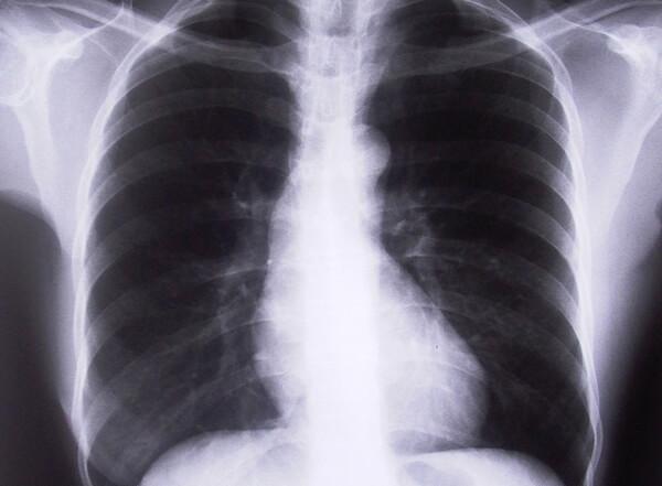 asbestos-jirei05